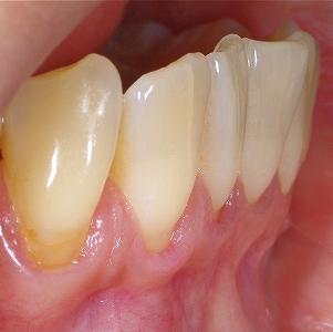 下顎前歯フェストーン2.jpg