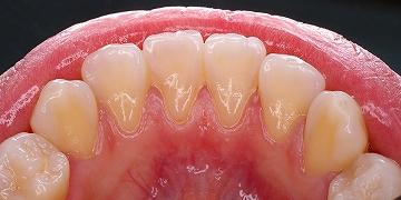 下顎前歯舌側歯石.jpg