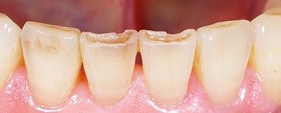 下顎前歯磨り減り70歳2.jpg