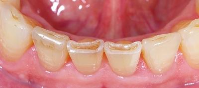 下顎前歯磨り減り70歳3.jpg