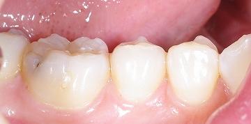 下顎大臼歯側面1.jpg