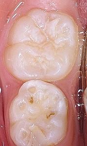 下顎第一大臼歯シーラント後.jpg