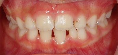 下顎乳前歯の先欠と癒合歯1.jpg