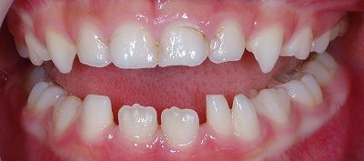 下顎乳前歯の先欠と癒合歯2.jpg