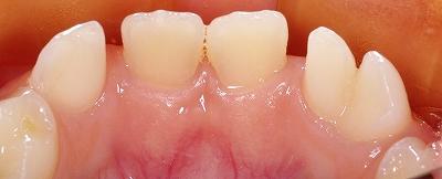 下顎乳前歯の先欠と癒合歯3.jpg