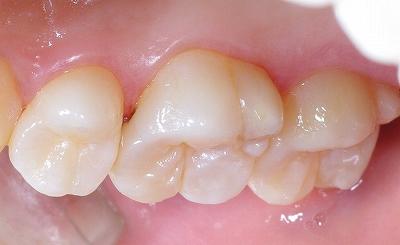 経過観察の初期の虫歯.jpg