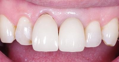 歯ブラシによる歯ぐきの退縮1-1.jpg