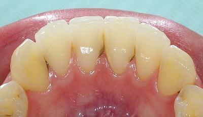 歯石が付きやすい部位.jpg