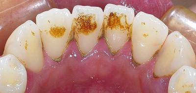 歯石除去下顎前歯1.jpg