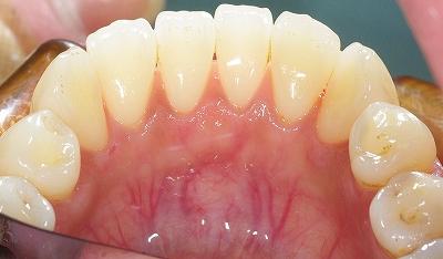 歯石除去下顎前歯2.jpg