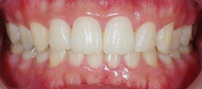 歯石除去希望で来院1.jpg