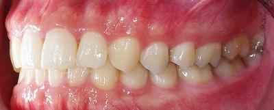 歯石除去希望で来院2.jpg