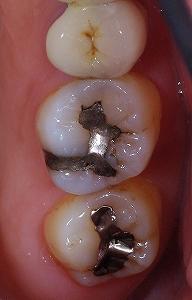右上第一大臼歯AFC2-1.jpg