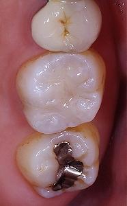右上第一大臼歯AFC2-2.jpg