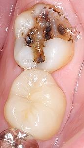 下顎臼歯を白くしたい多数歯4.jpg