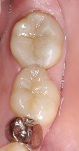 下顎臼歯を白くしたい多数歯5.jpg
