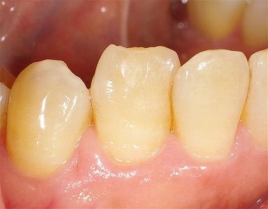下顎犬歯先端破折.jpg
