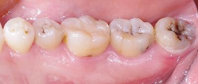 下顎舌側平滑面う触1.jpg