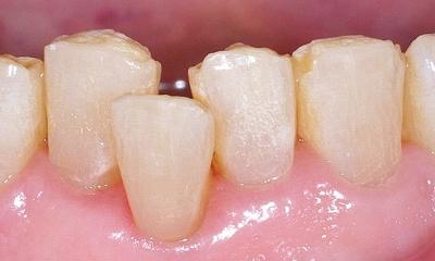 下顎前歯クラッシュ1.jpg