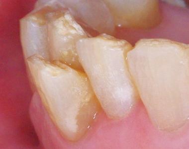 下顎前歯クラッシュ2.jpg