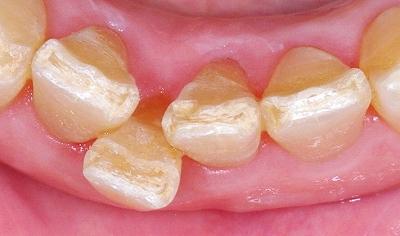 下顎前歯クラッシュ3.jpg