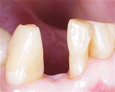 下顎前歯接着性ブリッジ1.jpg
