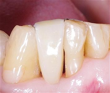 下顎前歯接着性ブリッジ2.jpg