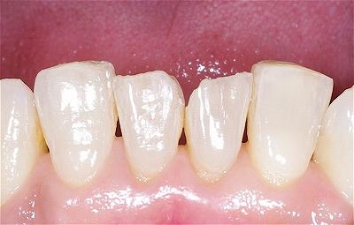 下顎前歯先端破折1.jpg