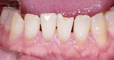 下顎前歯先端破折2-1.jpg