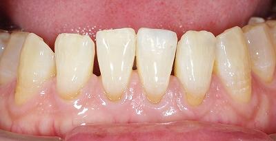 下顎前歯先端破折2-2.jpg