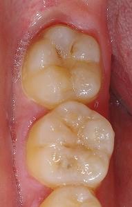 下顎大臼歯裂溝う触1.jpg