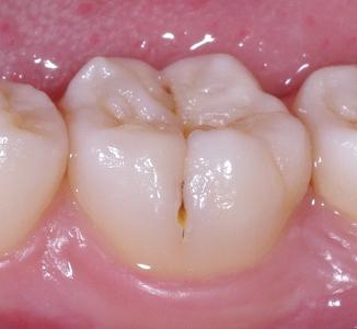 下顎第一大臼歯頬側裂溝側面.jpg