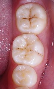 下顎第一大臼歯頬側裂溝咬合面.jpg