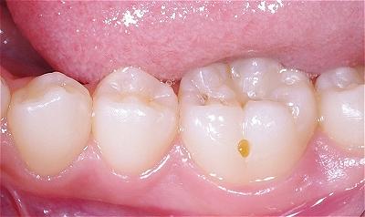 下顎第一大臼歯裂溝う触2.jpg