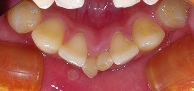 下顎乳前歯A晩期残存3.jpg