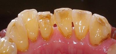 加齢による前歯磨り減り1.jpg