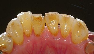 加齢による前歯磨り減り2.jpg