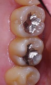 金属イオンによる変色・変質 上顎大臼歯1.jpg