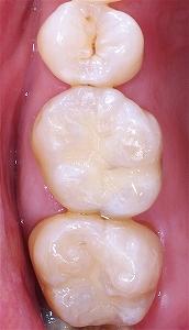 金属イオンは歯を黒くする3.jpg