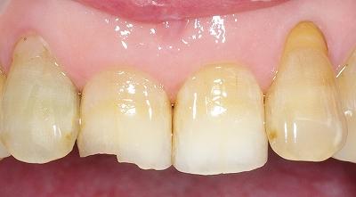 70代・上顎前歯先端破折1.jpg