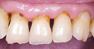 高齢者の歯頚部カリエス1.jpg