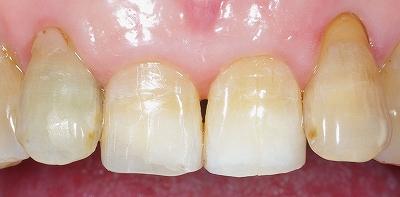 70代・上顎前歯先端破折2.jpg