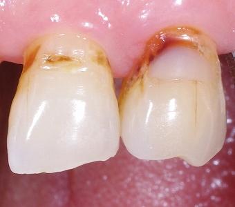 歯頚部虫歯をCR充填3-2.jpg