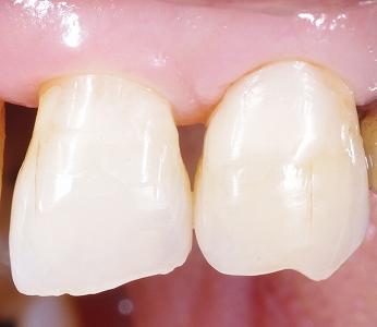 歯頚部虫歯をCR充填3-3.jpg