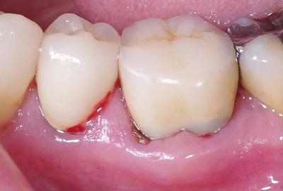 歯根破折による歯ぐきから出血1.jpg
