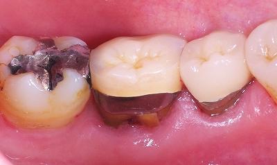 歯根破折による歯ぐきから出血2.jpg