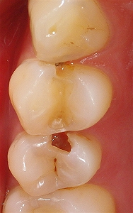歯質温存治療1.jpg