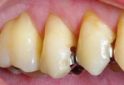 治療した金属の境目から新たな虫歯.jpg