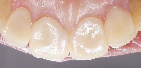 上顎4前歯ジルコニアレイヤリング舌側後.jpg