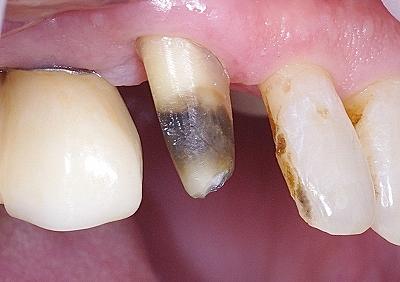上顎犬歯をジルコニアクラウンで修復1.jpg